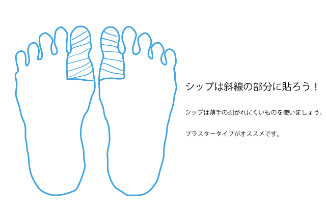 足の裏に湿布を貼る