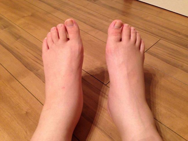 むくんだ足の画像